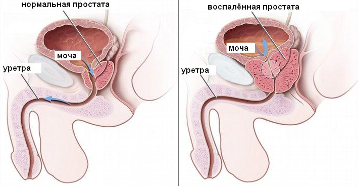 Если болит предстательная железа